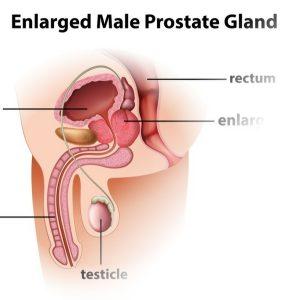 förstorad prostata ung